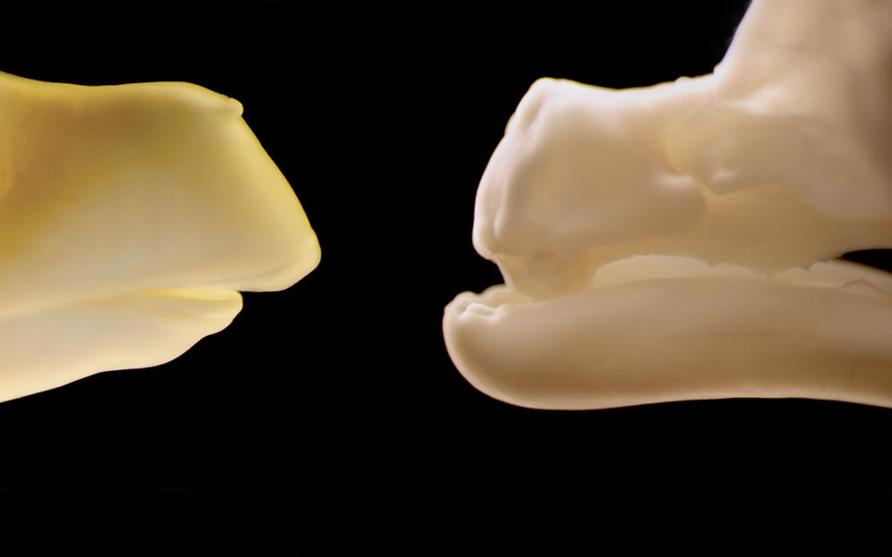 The mutant jaw (right) clearly shows teeth compared to a normal chick (left). Drs. John Fallon and Matthew Harris